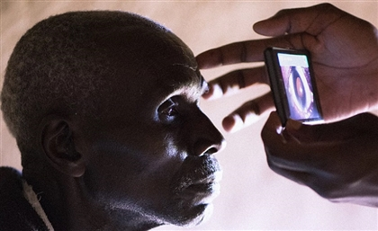 Egyptian Medical Team Performed 107 Eye Operations in Kenya