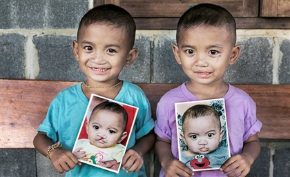Operation Smile Hosts Free Convoy in Aswan to Help Treat Cleft Lip