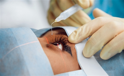 250 Underprivileged Egyptians to Receive Free Cataract Surgeries
